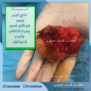 خارج-کردن-تومور