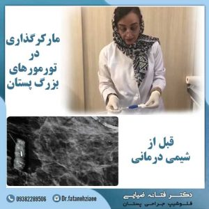 مارکرگذاری-تومور-پستان-قبل-از-شیمی-درمانی