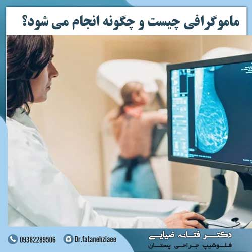 ماموگرافی-چیست-و-چگونه-انجام-می-شود؟