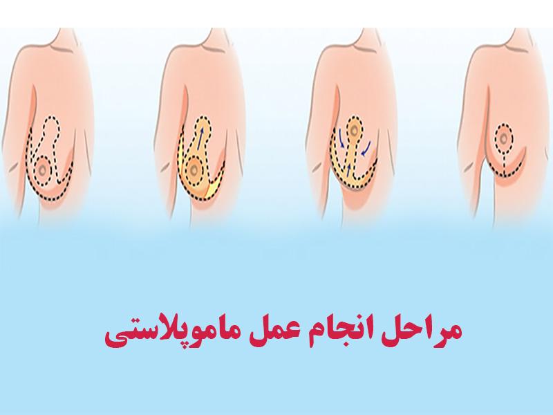 مراحل انجام عمل ماموپلاستی