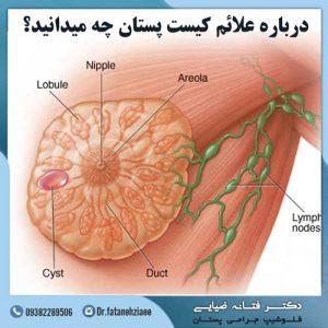 علائم کیست پستان چیست؟