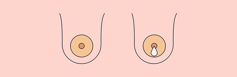 علل ترشحات نوک پستان